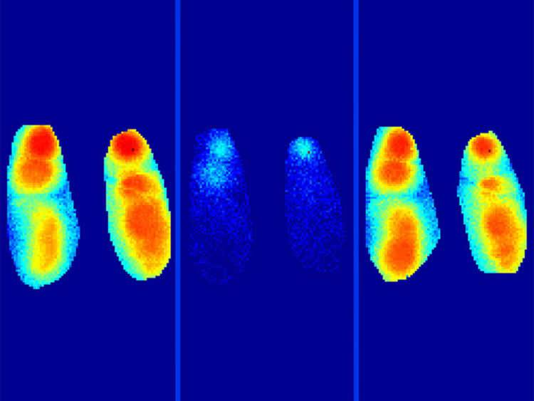 amyloid-beta-sleep-memory-alzheimers